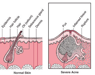 Natural Acne Care