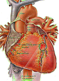Arteriosclerosis is the hardening and loss of elasticity of medium or large arteries