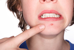 Acne can appear on any oil-producing area of the body