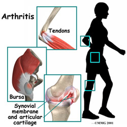 Some of the symptoms of arthritis will include pain in the leg muscles and joints, swelling and tenderness and a cracking sound when you bend your knees.