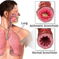 common symptoms are coughing, chest tightening, a shortness of breath, and wheezing