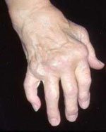 Rheumatoid arthritis in hands
